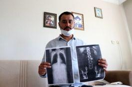 Sivil Gazi vatandaş vücudunda 4 yıldır 1 mermi ile yaşıyor